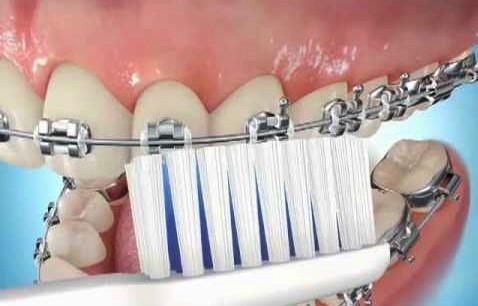 check up da higiene