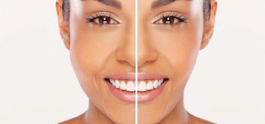 bichectomia-afinamento-da-face